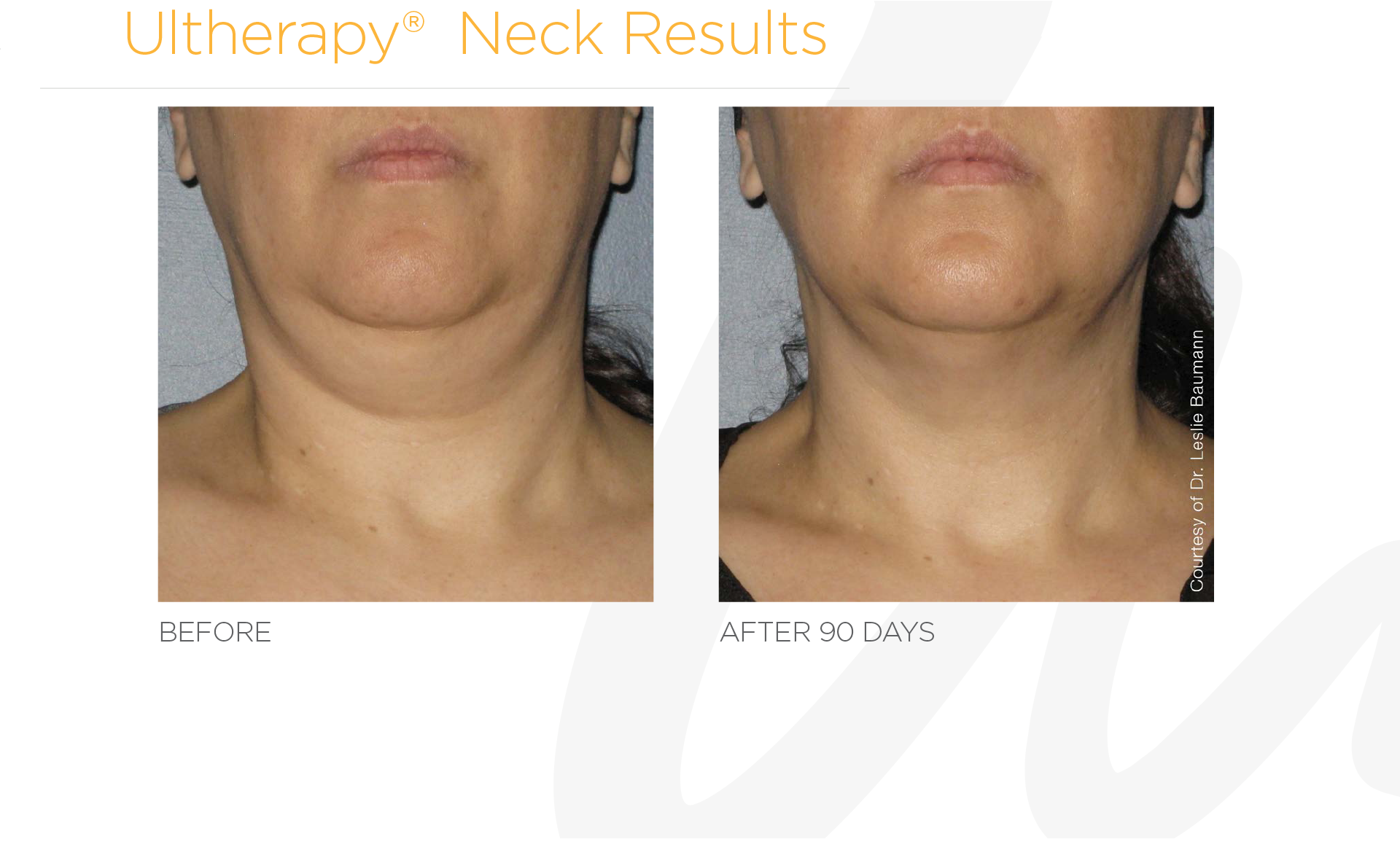 Ultherapy Neck Before And After Results