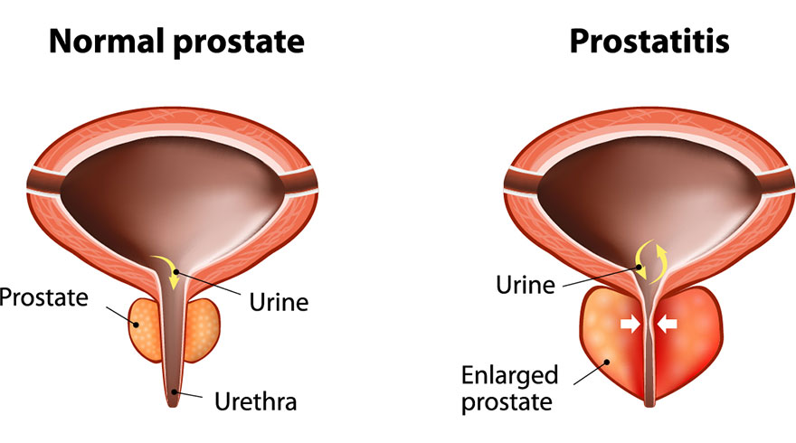 Prostatitis: What Is It and Is Pelvic PT Right for You?