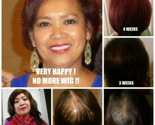 This woman wore wigs for years. This progression is one month on the formulas