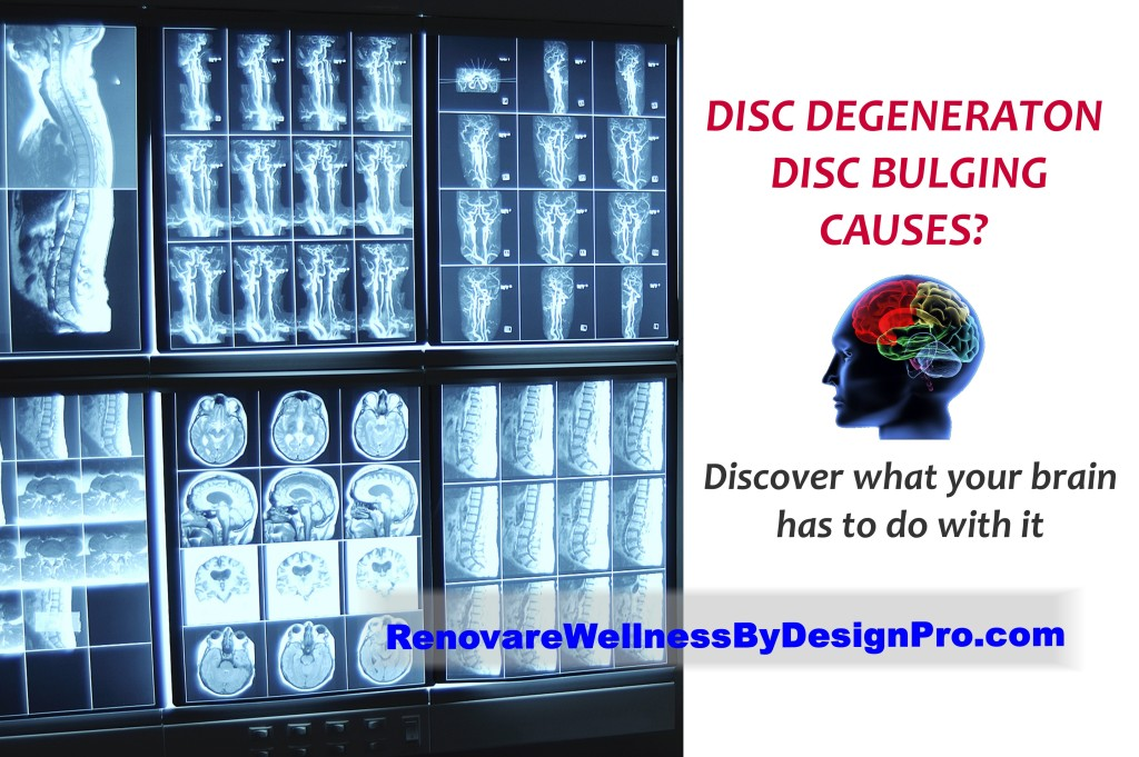 WBD low back pain disc degeneration brain mapping brain balancing neurofeedback chronic pain fibromyalgia chronic fatigue syndrome