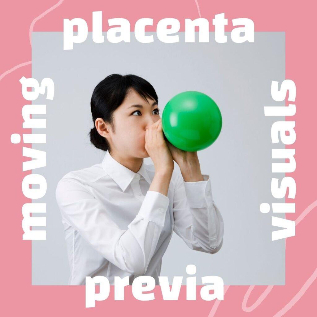 placenta previa ideas