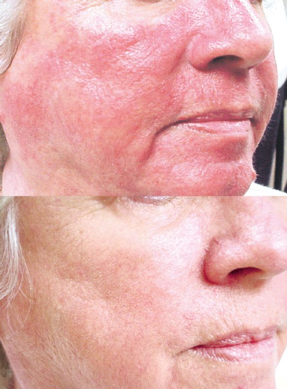 IPL Photofacial (Photorejuvenation) produces impressive results for a variety of skin conditions including Rosacea and unsightly veins.
