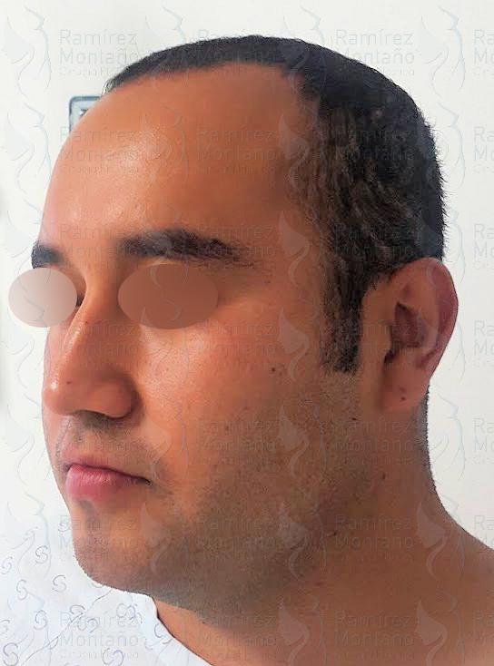 Before-Lipo de cuello
