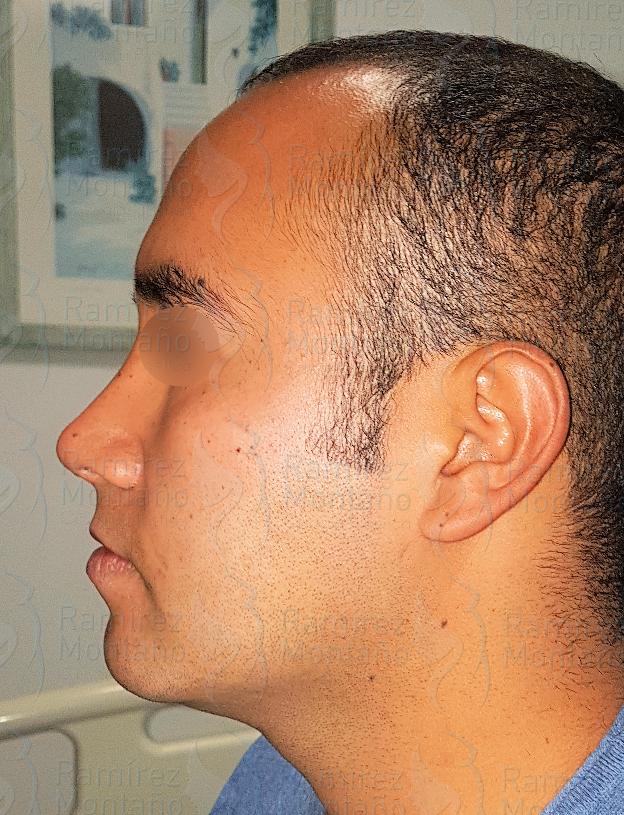 After-lipo de cuello