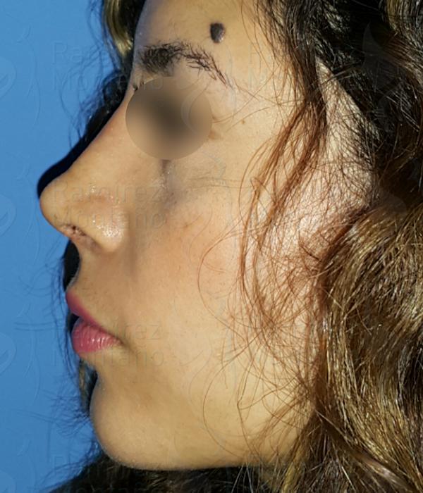 After-Rinoplastia