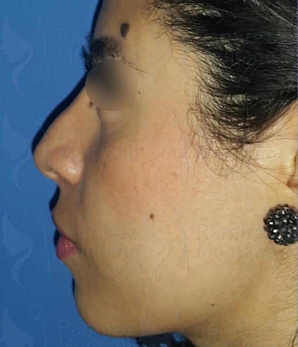Before-Rinoplastia