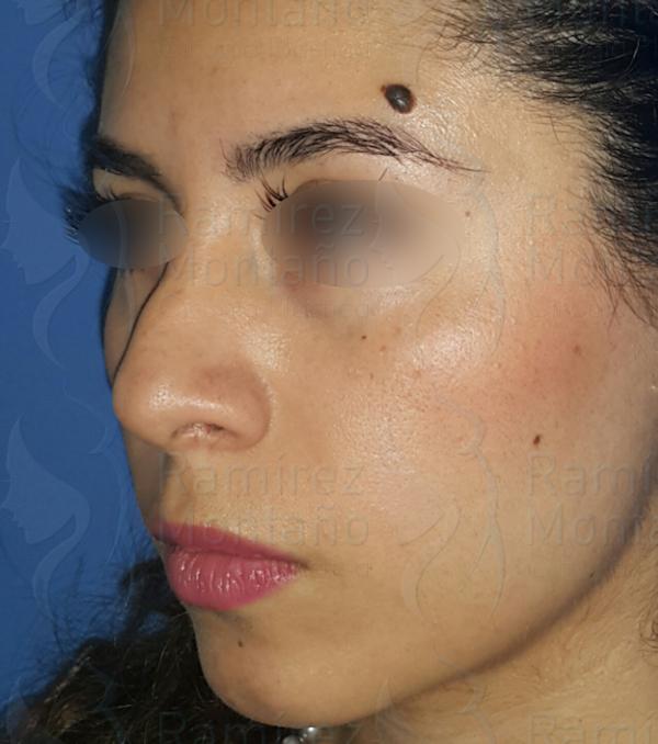 Before-rinoplastia2