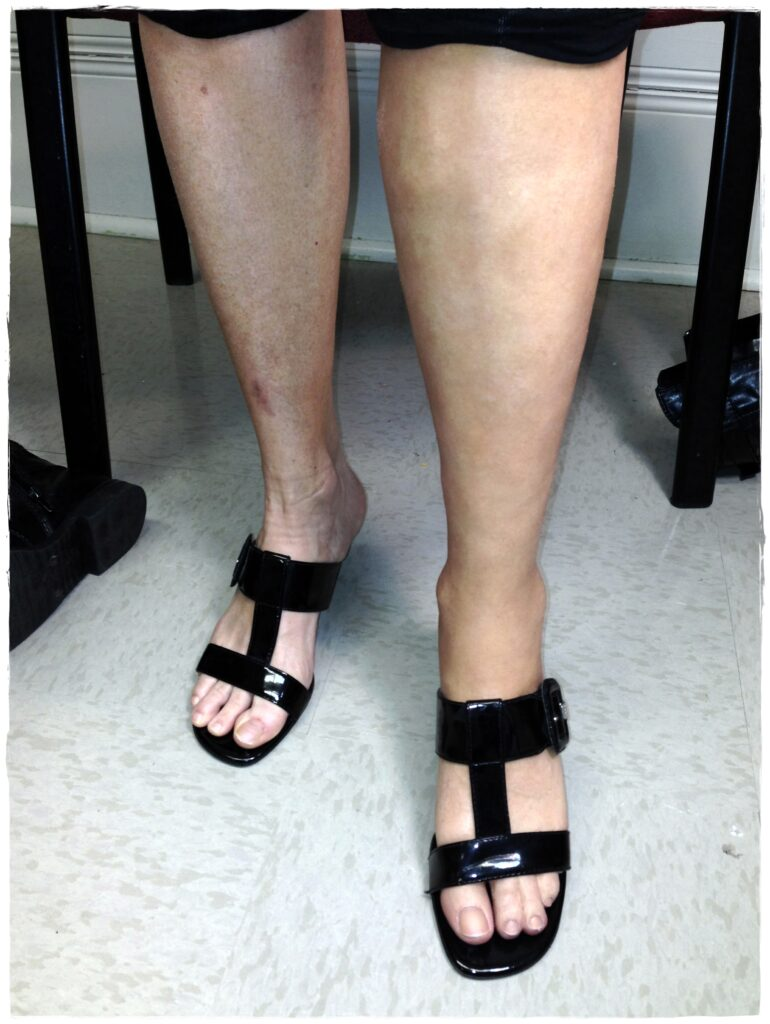prosthetic leg with silicone skin finishing