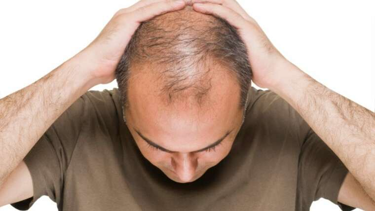 Platelet Rich Plasma (PRP) for Hair Growth: What You Need To Know