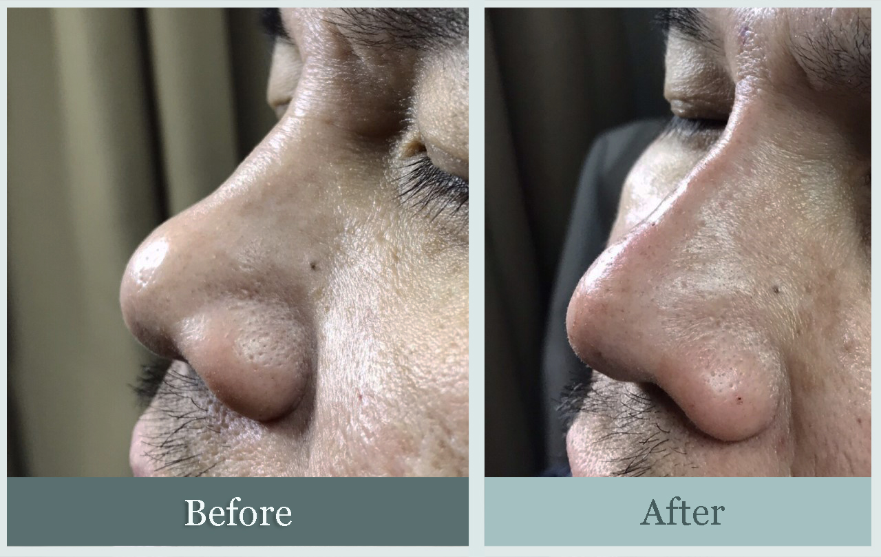 Nonsurgical nose job patient