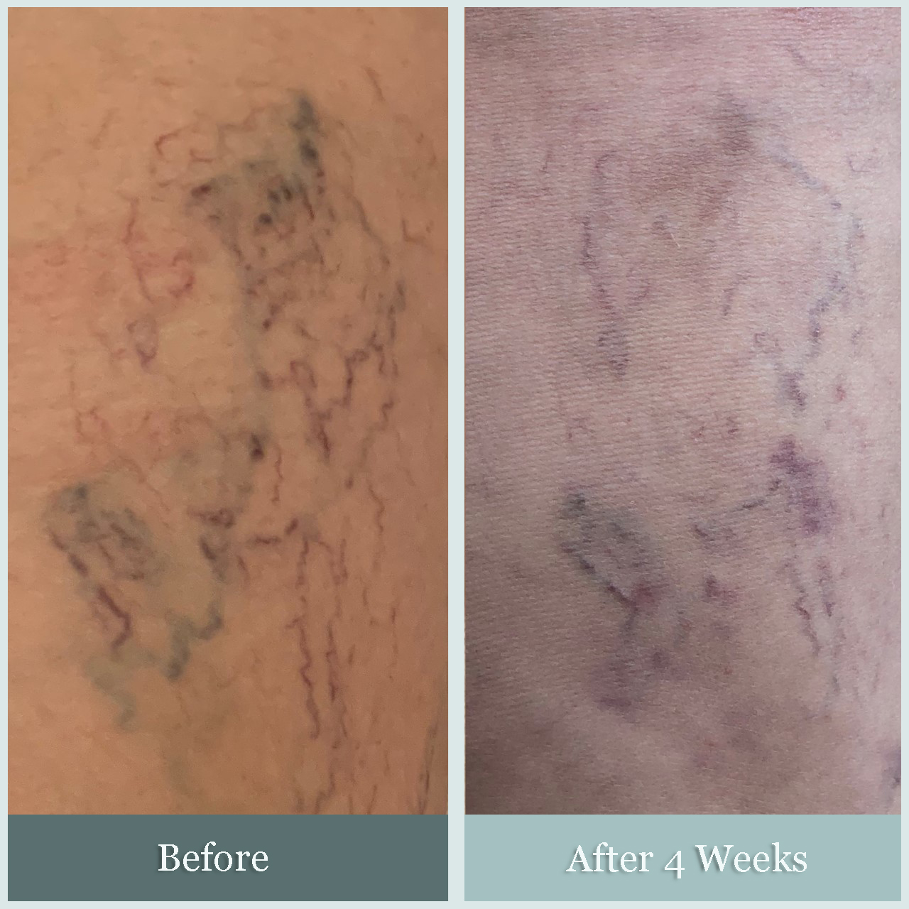 before and after photo of sclerotherapy patient