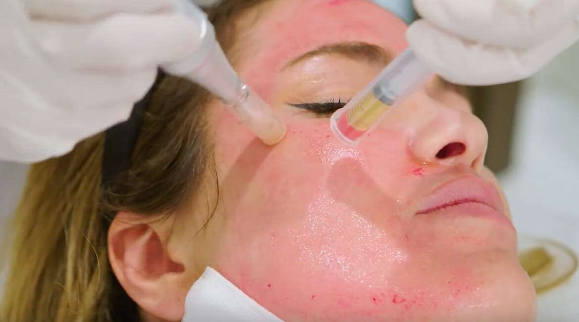 PRP for Neck or Face