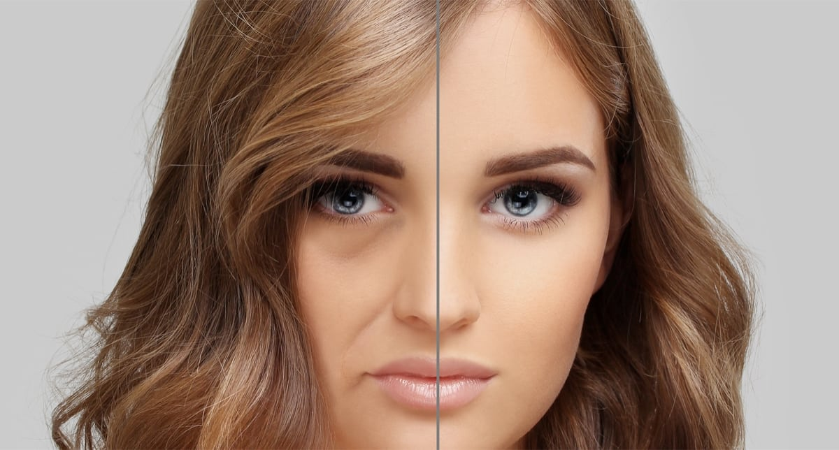 Things to know about Fotona Tight Sculpting and Juvederm Dermal fillers in Hamilton
