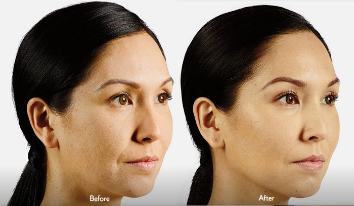 How to Take Care after Juvederm?