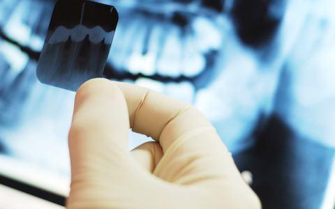 roberto_pocaterra_pocaterra_santa_barbara_del_zulia_la_radiologia_y_su_impacto_en_la_salud_dental.jpg
