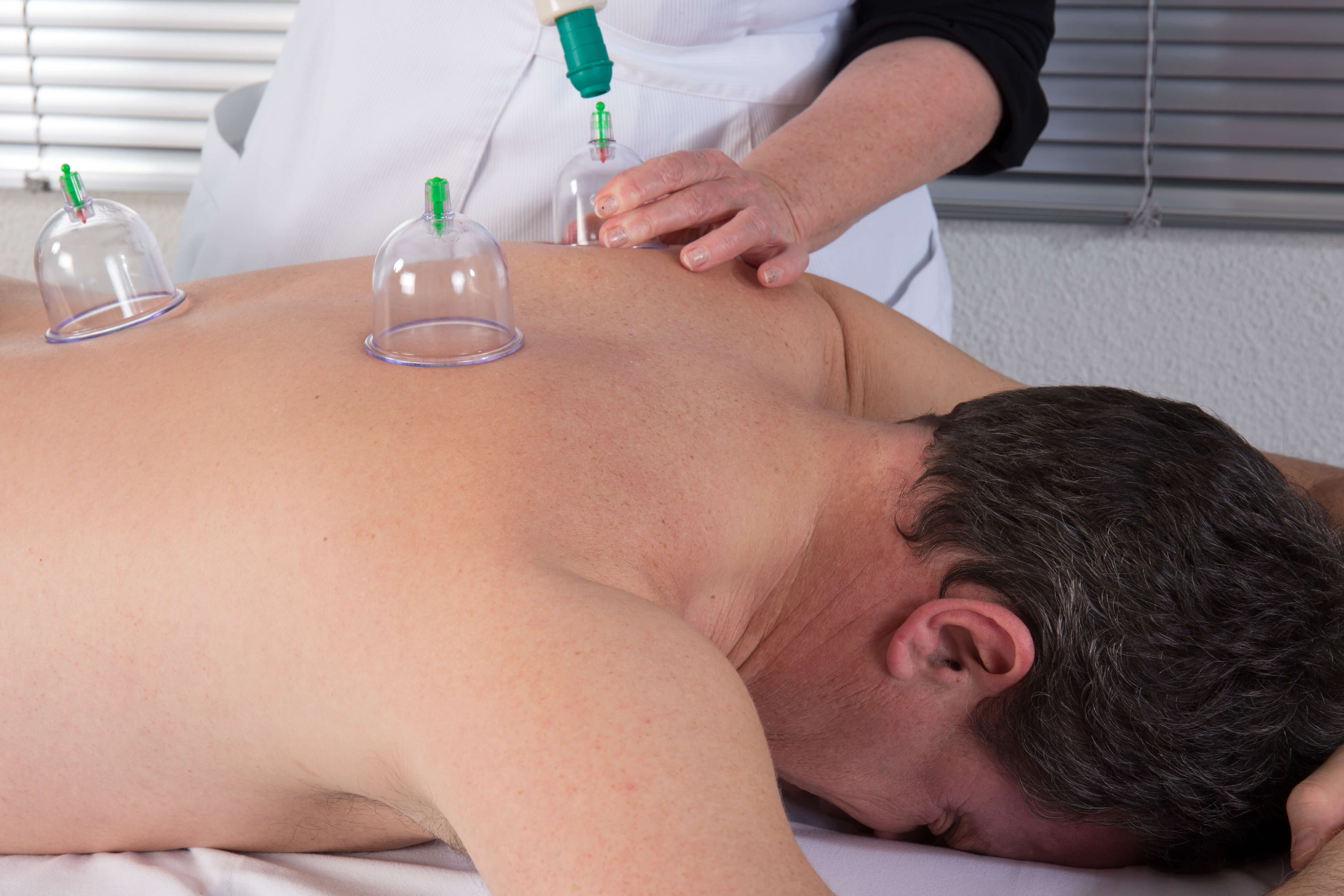 Hijama: It's benefits and How is it Used?