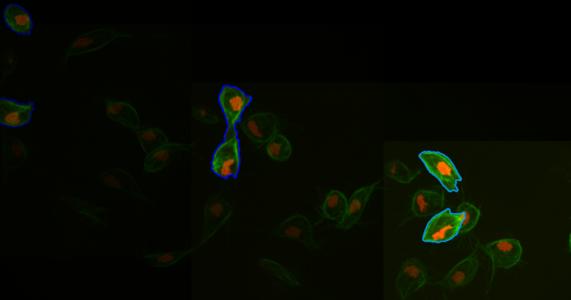 Tăng sinh lực cho hệ miễn dịch để thực bào ung thư