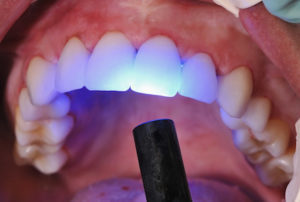 Image of the light used to cure the composite used in dental bonding to improve the look of a tooth.