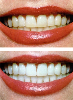 Before and after comparison of a smile improved with zoom teeth whitening treatment found at Smiles of Beverly Hills.
