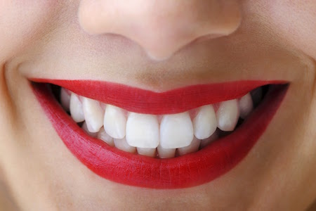 Closeup image of a smile after KöR Teeth Whitening treatment found at Smiles of Beverly Hills.