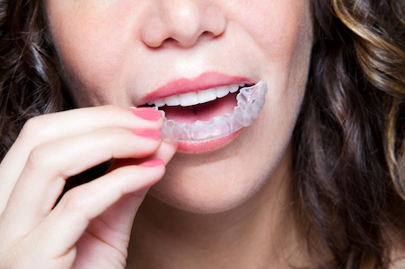 Image of woman putting in her invisalign braces tray she got from Smiles of Beverly Hills.