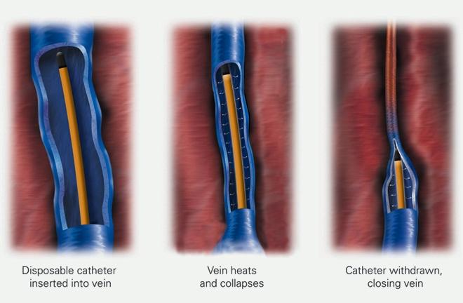 Venefit Procedure at Pura Vida Med Spa
