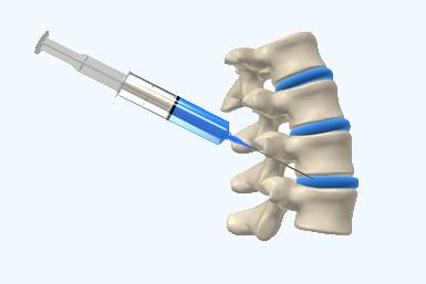 Beyond Epidurals  Management of Back Pain
