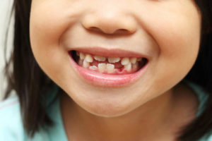 Tips To Prevent Premature Loss Of Baby Teeth Featured Image - Park City Dental