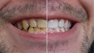 What Causes Teeth Yellowing Featured Image - Park City Dental