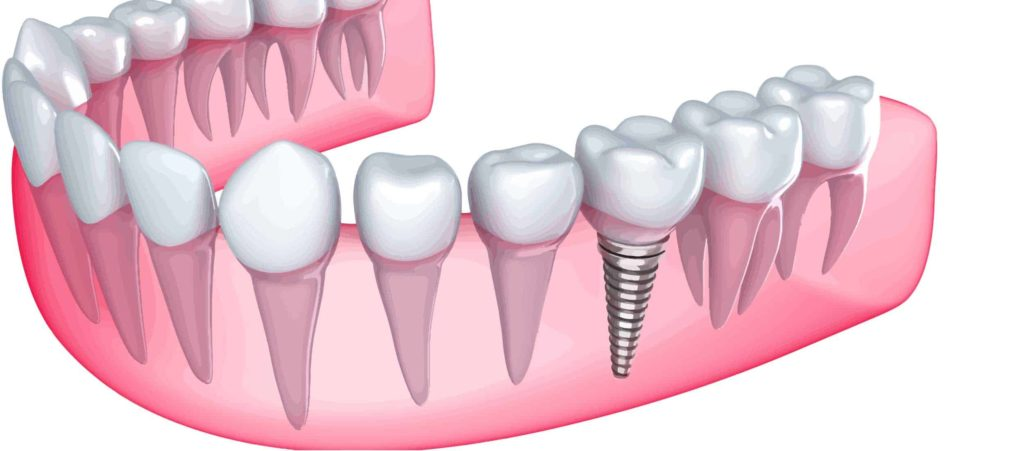 Tooth Replacement That's Better Than A Bridge Featured Image - Park City Dental
