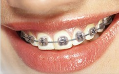 Metalic Braces
