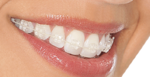 Zafiro Braces