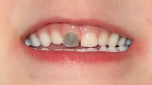 Why do I have a black tooth?