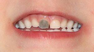 ¿Por qué tengo un diente negro?