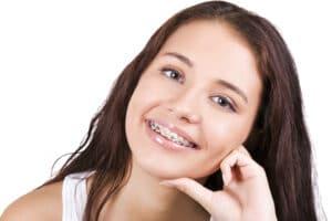 ¿Qué se debe conocer antes de tener frenos dentales (Brackets)? La perspectiva del paciente
