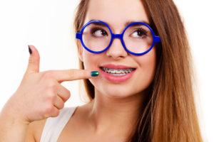 ¿Qué se debe conocer antes de tener frenos dentales (Brackets)?