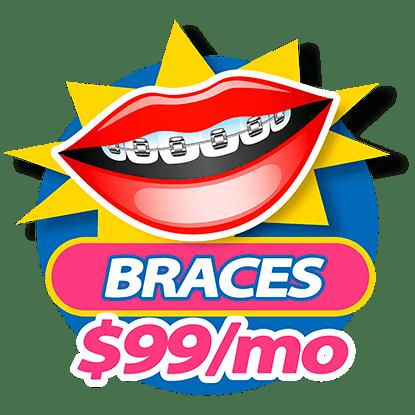 Dental Braces for $99 a month at Somos Dental