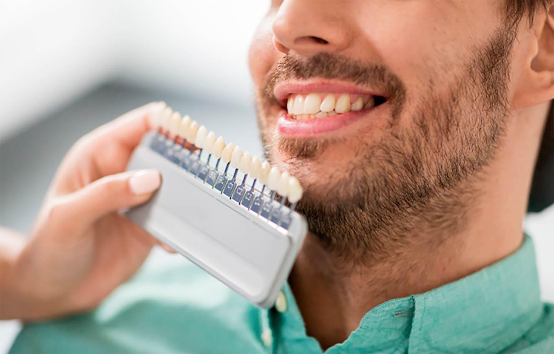 DIY-teeth-cleaning-and-teeth-whitening