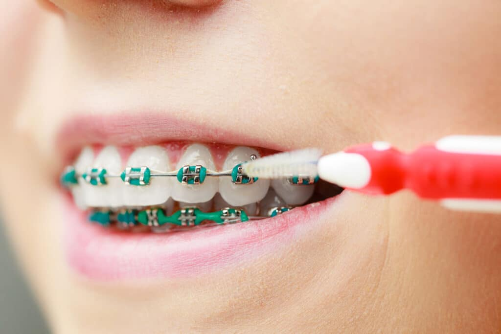 Tips-for-brushing-teeth-with-braces