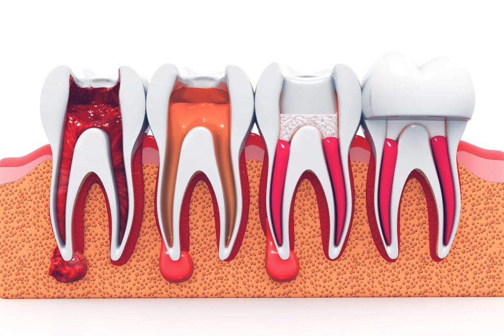 Root Canal Treatment in Phoenix