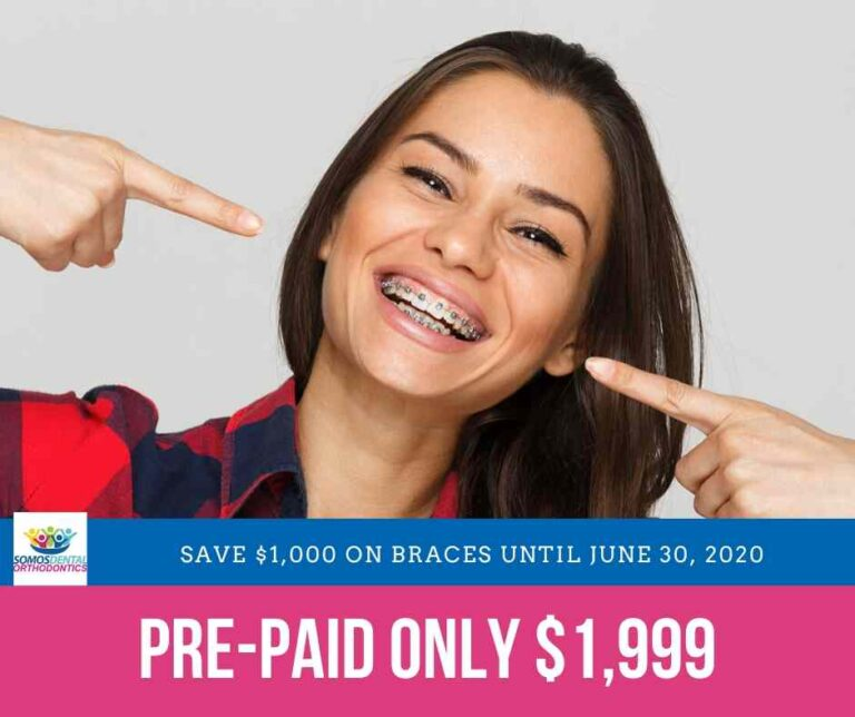 Prepaid Braces $1,999 - JUNE 2020