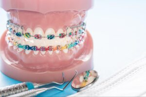 How long do I have to wear dental braces?