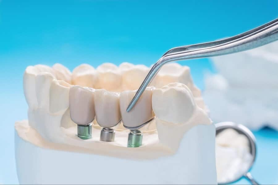 Dental bridges