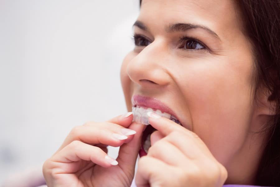 How to know if my case qualifies Invisalign