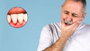 Gum bleeding? Causes and treatment of gingivitis and periodontitis