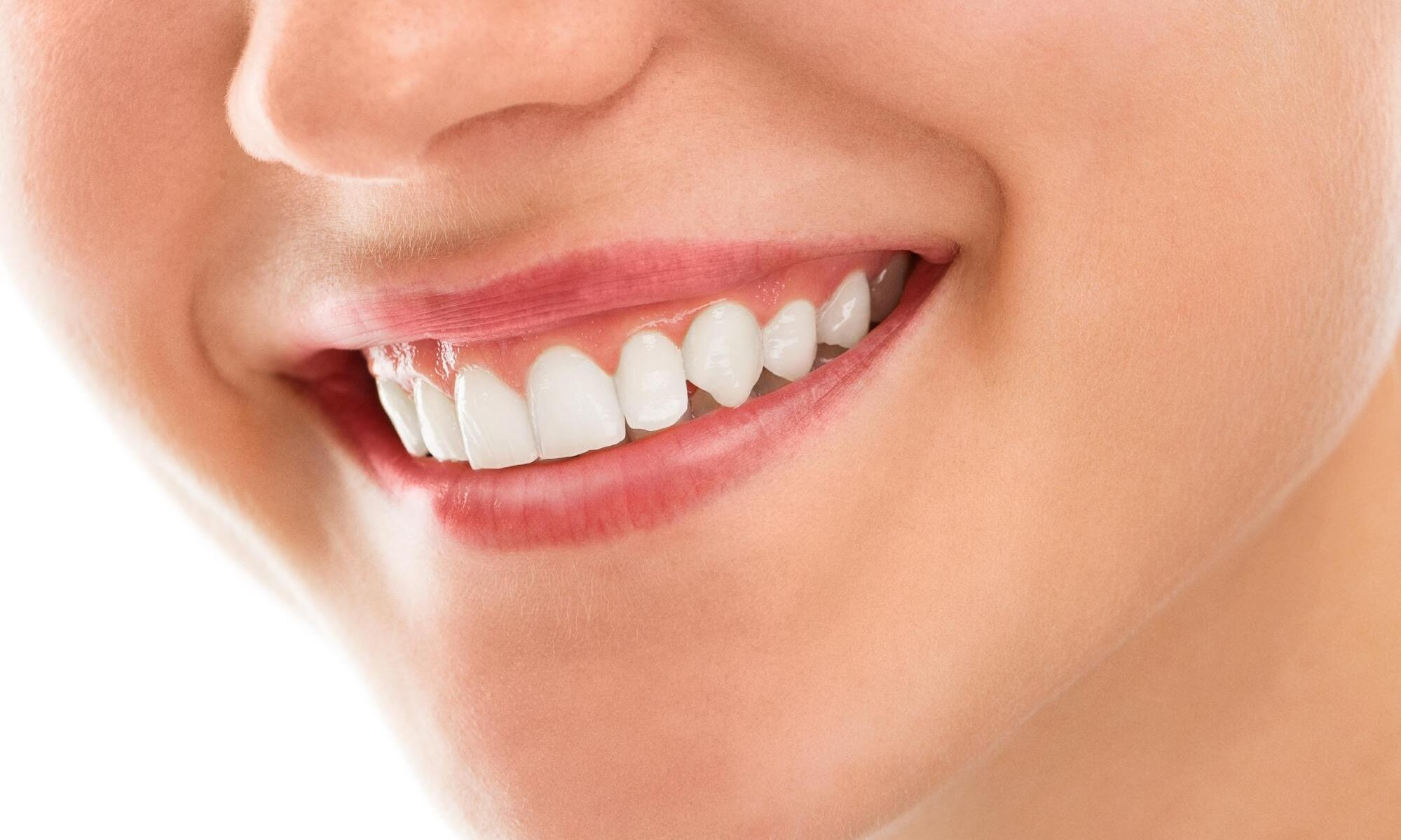 Show off a more beautiful smile with Gingivectomy