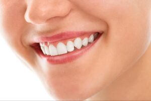 Show off a more beautiful smile with Gingivectomy, the cosmetic gum surgery