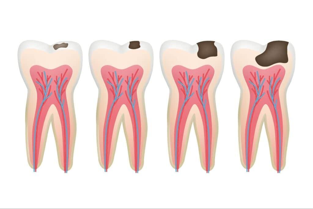 teeth issues