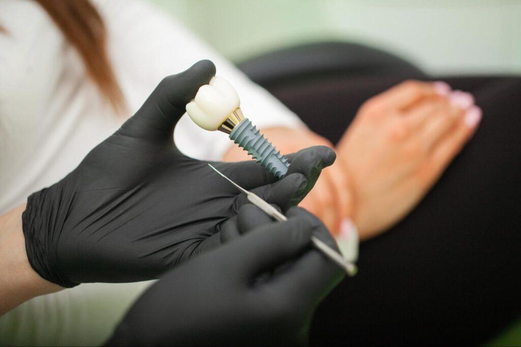 Costo de implantes dentales en Phoenix