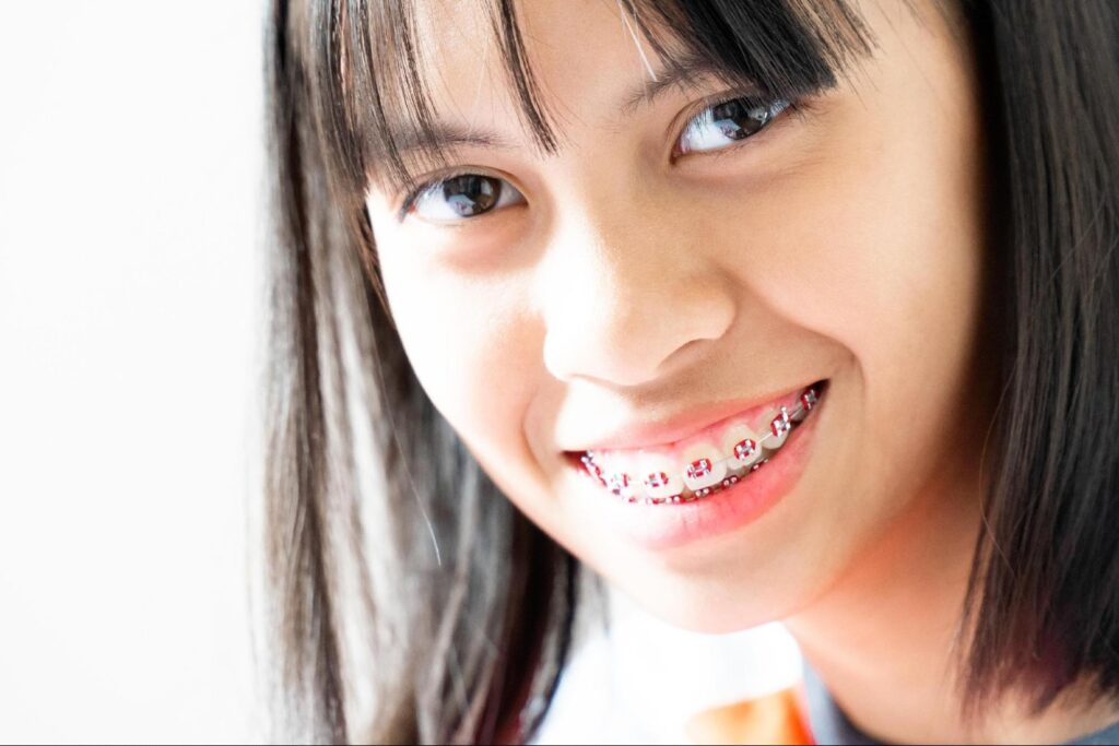 Give style to your smile with these braces color ideas